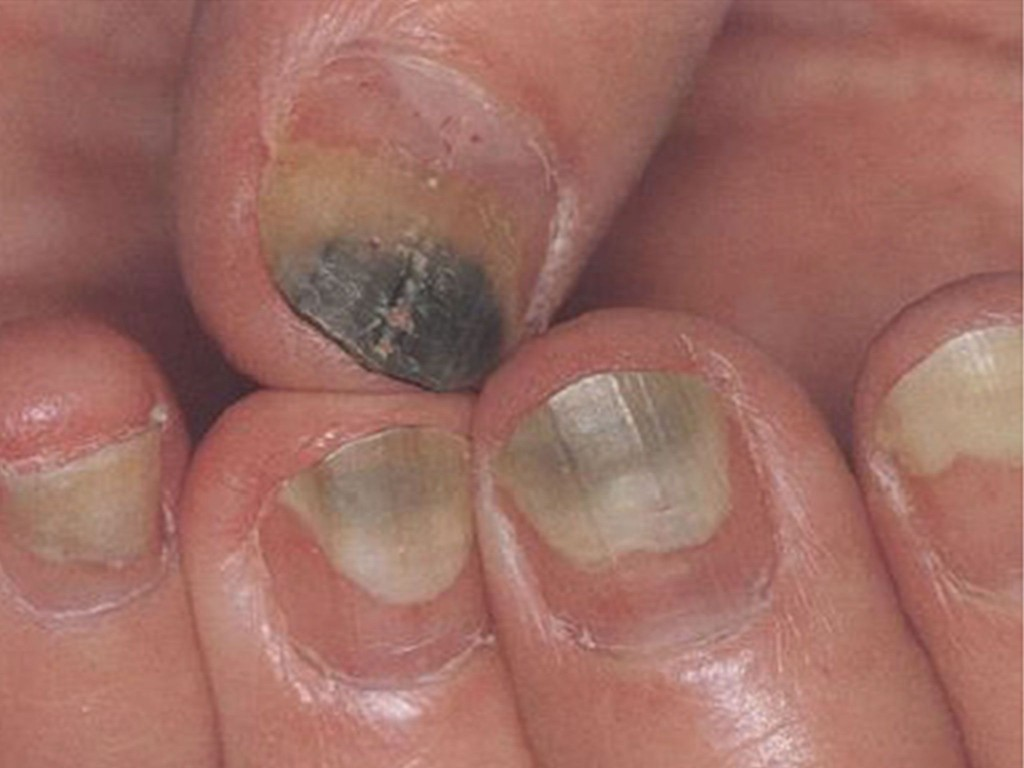 Can I Sue A Nail Salon For Infection - NaturalSalons